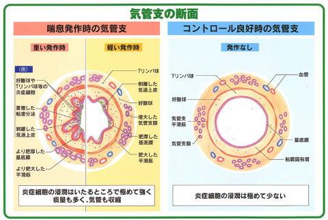 正常の気管支と喘息患者の気管支のイメージ